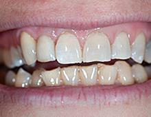 Izgled u ustima pacijenta