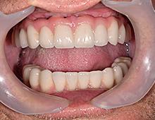 Definitivni metalokeramički mostovi u ustima pacijenta