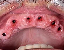 Izlazni profili (desni oko integrisanih implantata)