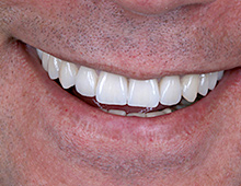 Izgled u ustima pacijenta pri maksimalnom osmehu