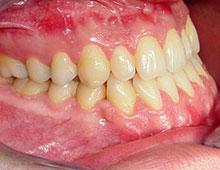 Stanje nakon kombinovanog hirurško ortodontskog tretmana